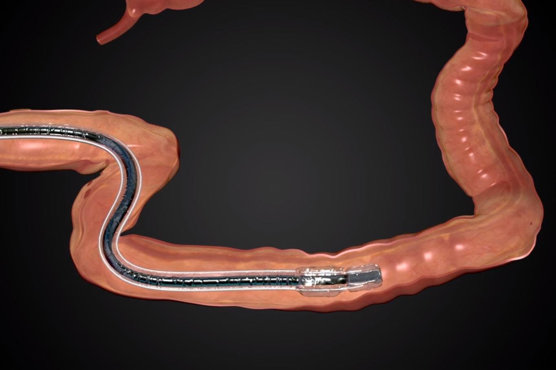 DiLumenTM Endolumenal Interventional Platform endoscopic sheath medical animation