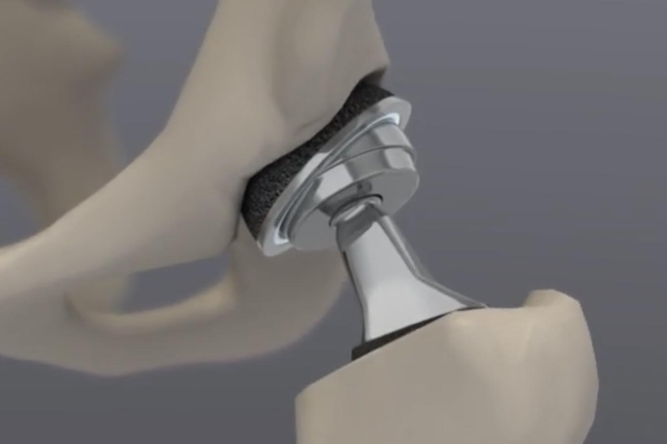 hip replacement surgery animation range of motion step