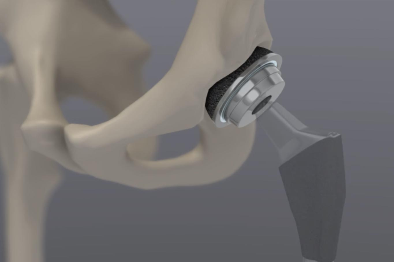 hip replacement surgery animation third step