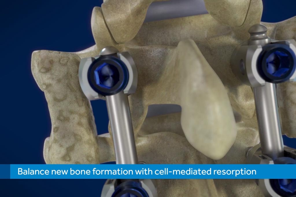 mastergraft by medtronic host cell recovery graft placement bone formation d medical animation