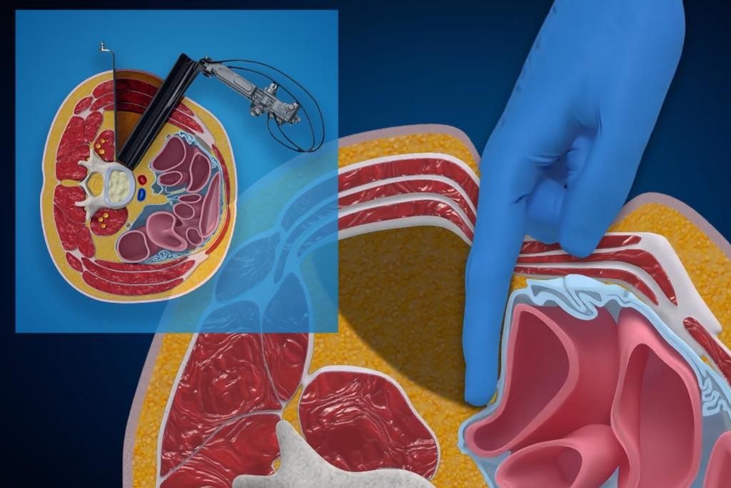 medtronic olif medical animation oblique coorido tool locationr animation