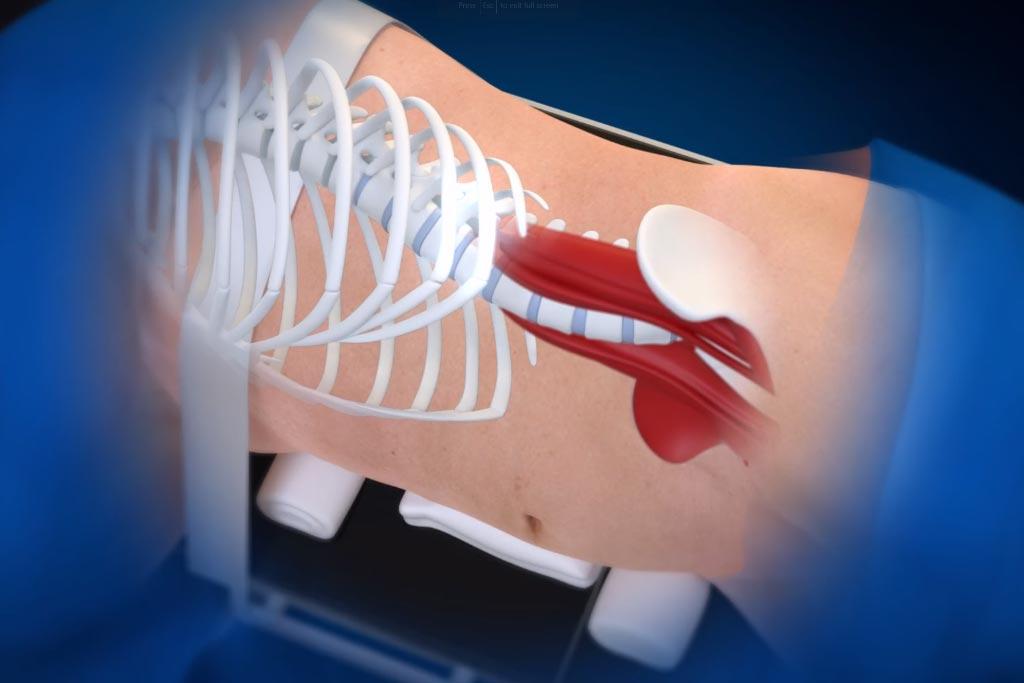 medtronic olif medical animation side overlay